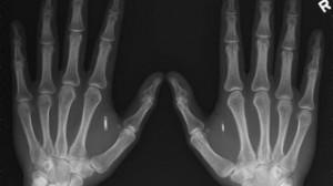 Raio-x do americano Amal Graafstra: biochips de controle de acesso nas duas mãos (Divulgação/VEJA)