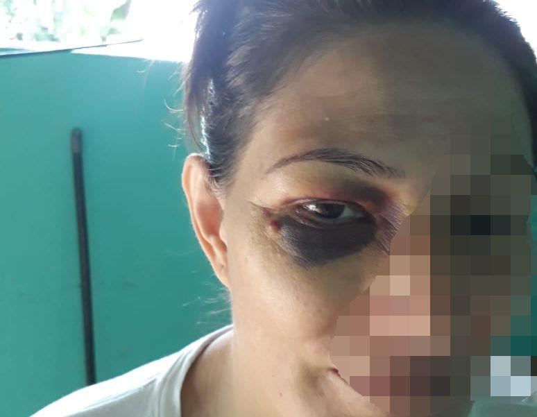 Ireni-Almeida-Chaves-A1a Relato e sofrimento de vítima que sofreu tentativa de feminicídio choca moradores de Araguacema